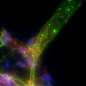 stem_cell_stem